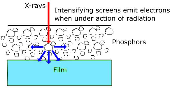 intensifying-screen